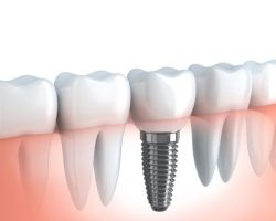 SHOULD I REPLACE MY MISSING TEETH WITH DENTAL IMPLANTS ...